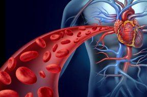 8 απλές χειροποίητες θεραπείες που συμβάλλουν στον καθαρισμό των αρτηριών